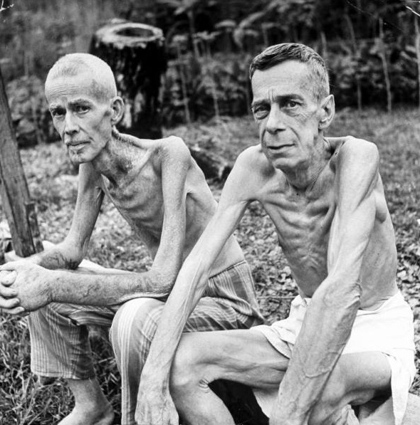 Image result for starving auschwitz survivors